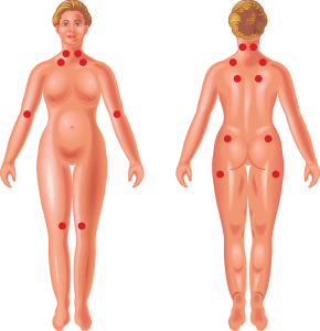 fibromyalgia symptoms woman