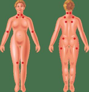severe fibromyalgia