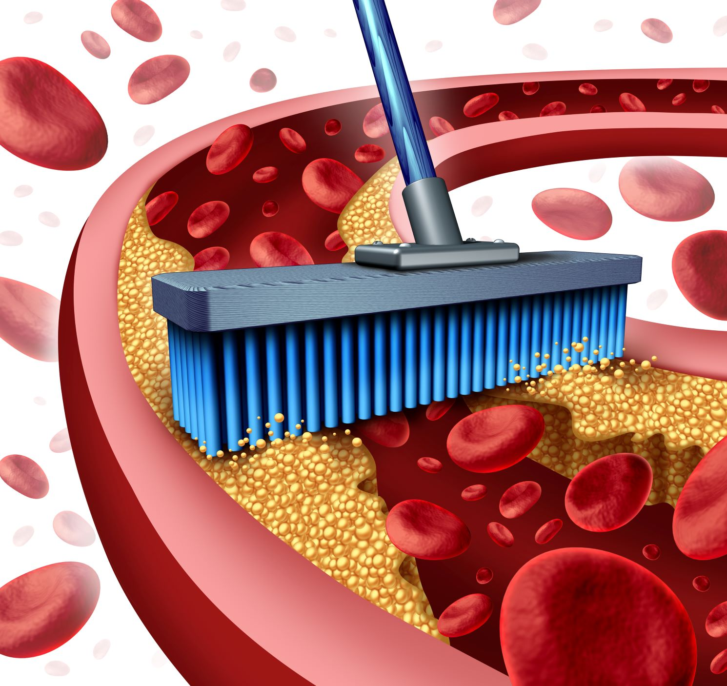 clogged arteries, symptoms of clogged arteries, signs of clogged arteries, what causes clogged arteries, what is main cause of clogged arteries